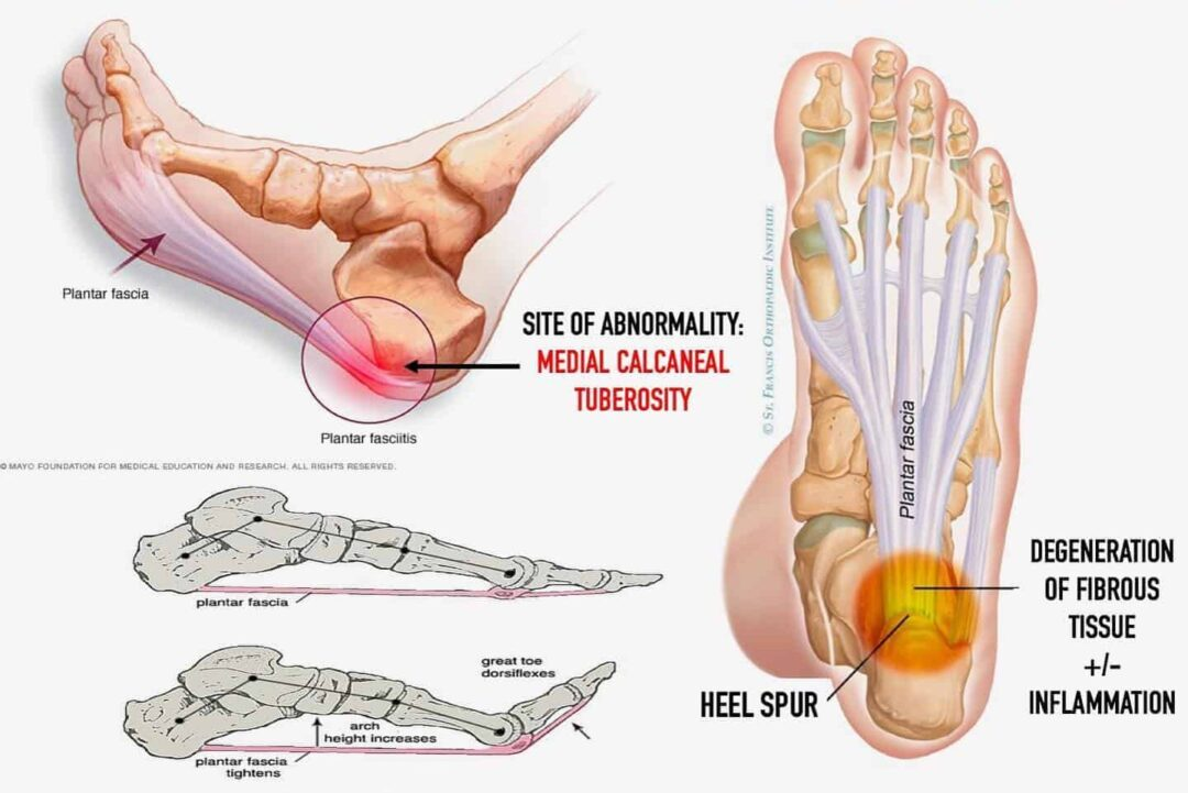 Insoles for Basketball Plantar Fasciitis